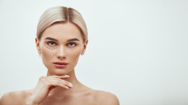 Woman who had eyelid surgery